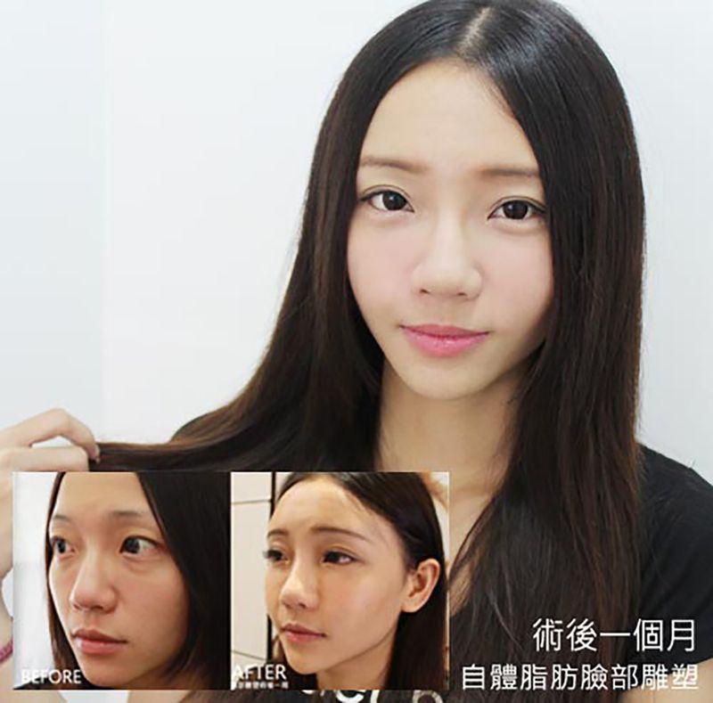 自體脂肪補臉,成功打造韓系愛心臉 !