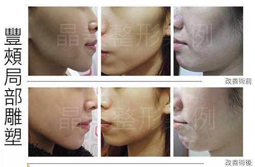自體脂肪補臉-豐頰/蘋果肌/臉部局部雕塑,改造臉型改變運氣 !