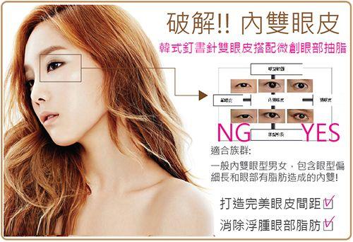 11種「眼部微創抽脂+釘書針雙眼皮」變身混血電眼成功案例 !