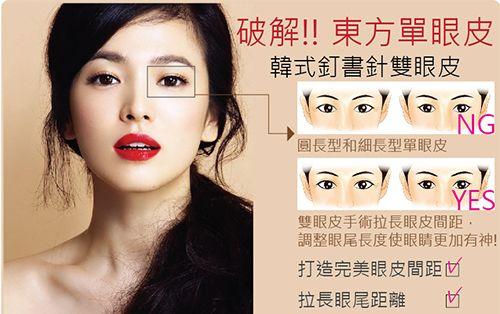 晶美訂書針雙眼皮,解決十種眼型的困擾 !