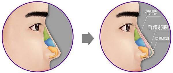 晶美韓式鼻雕隆鼻,打造韓國UEE 鼻形!