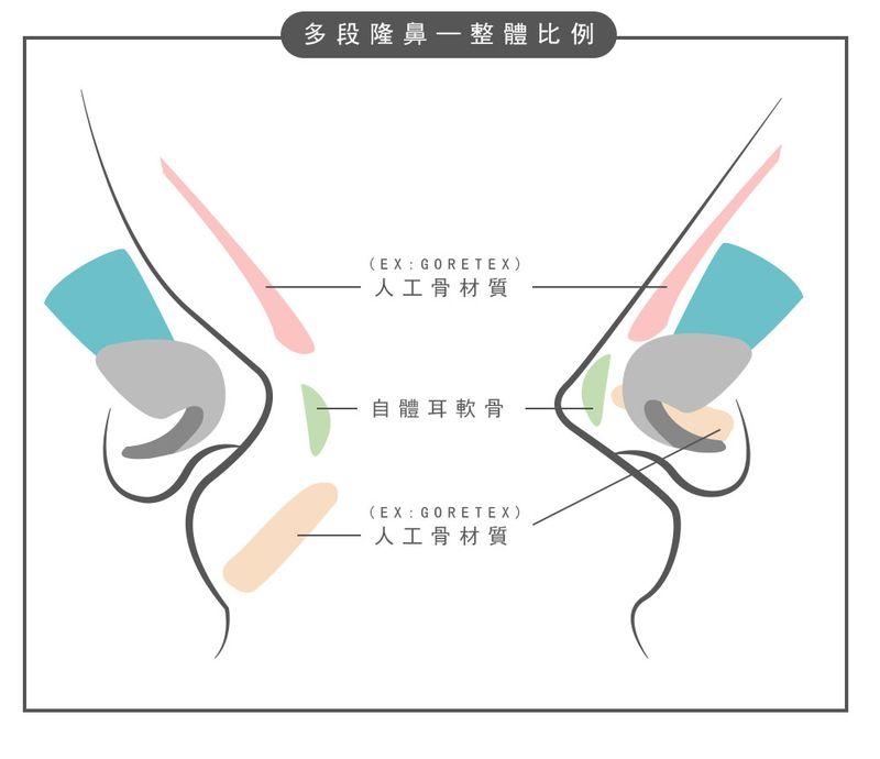 晶美客製化三段式隆鼻鼻雕,了解鼻型對症下藥