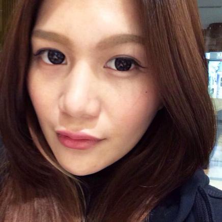 晶美Bistool韓式鼻雕,三段式隆鼻鼻骨,鼻尖,鼻翼一次得到改善…