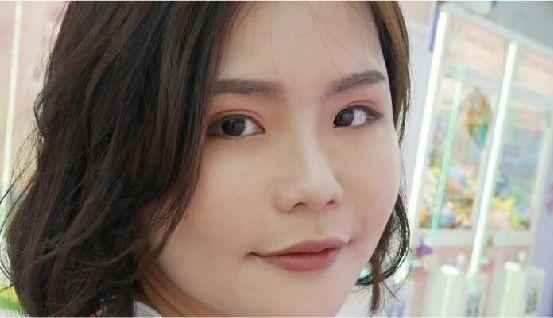 五合一眼袋手術│割雙眼皮 │眼袋、淚溝通通不見- 晶美整形外科