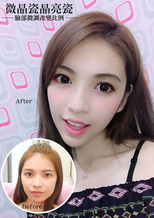 晶美【微晶瓷晶亮瓷】改善臉部比例,微晶瓷晶亮瓷讓我有更精緻臉型