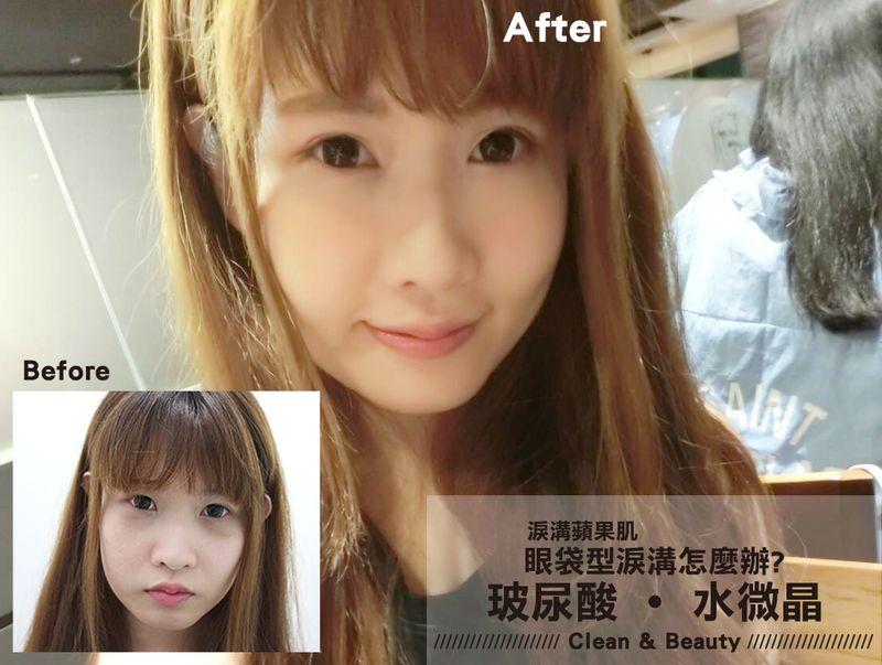 晶美【玻尿酸水微晶】改善眼袋型淚溝打造澎澎愛心顏