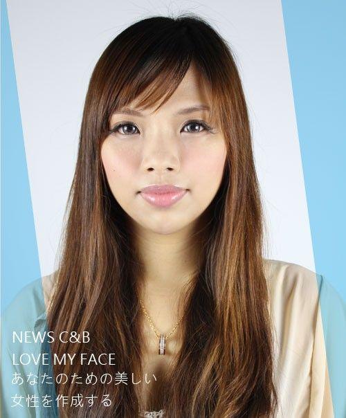 晶美【玻尿酸】製造完美臉型!玻尿酸/水微晶改善溝淚+墊下巴 撫平我的瑕疵!