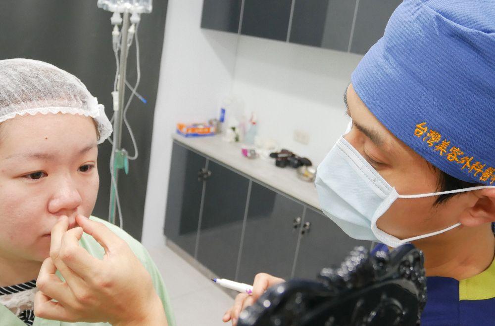 縮鼻翼手術-晶美整形外科