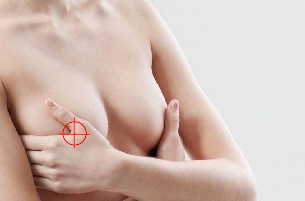 乳頭乳暈整形│晶美整形外科