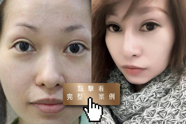 專業鼻雕隆鼻,改善鼻型打造絕美亞洲鼻型