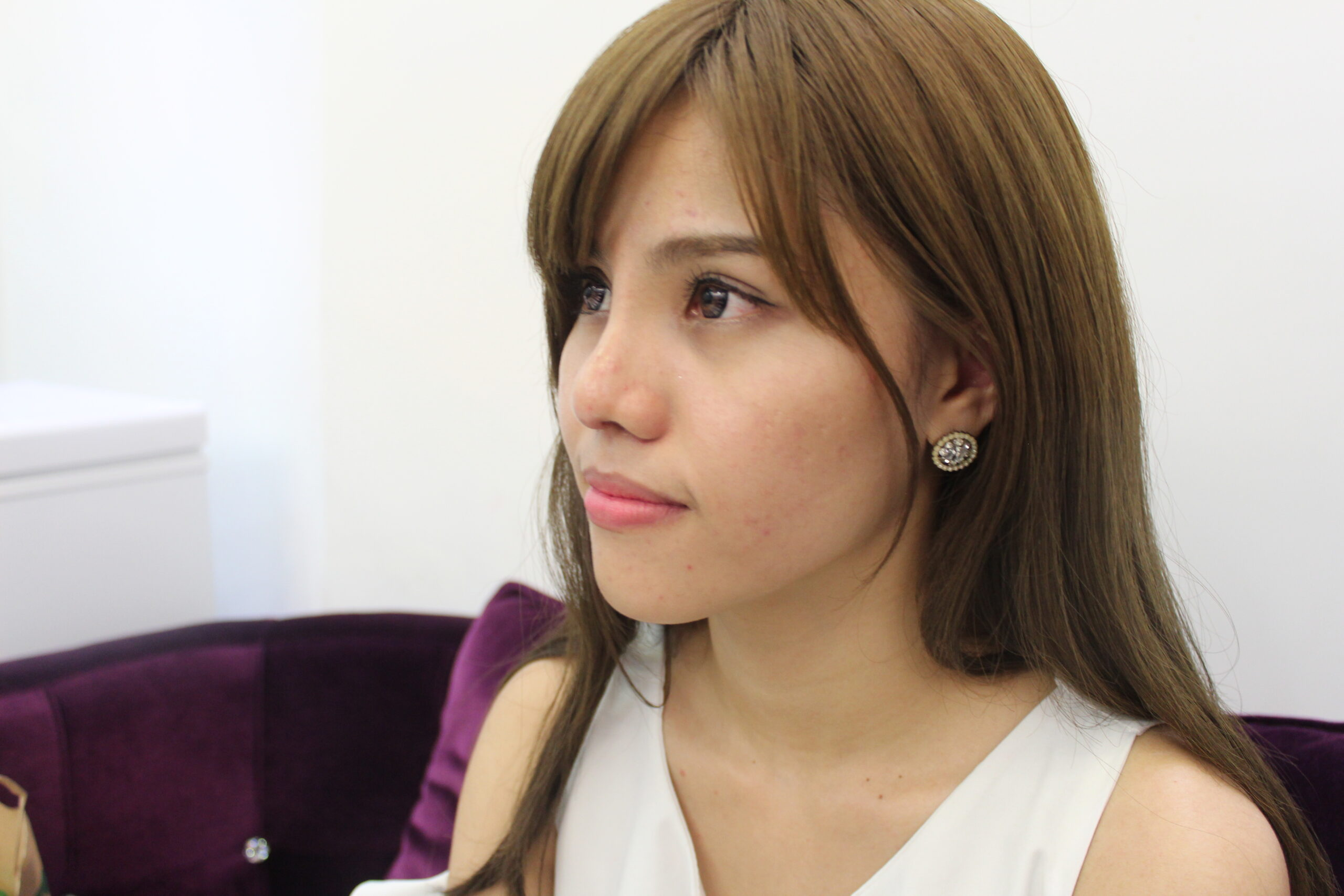 專業鼻雕隆鼻,精雕複合式鼻雕手術,馬來西亞俏妞改善鼻型