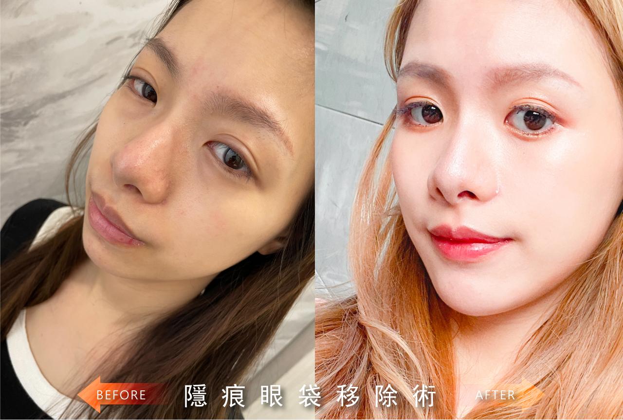 眼袋手術-晶美整形外科